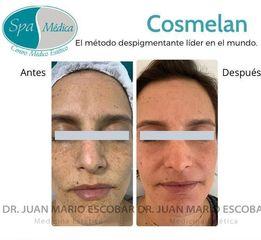 Manchas en la piel - Dr. Juan Mario Escobar