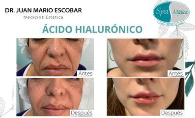 Ácido hialurónico - Dr. Juan Mario Escobar