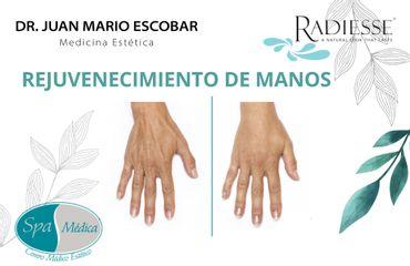 Rejuvenecimiento manos - Dr. Juan Mario Escobar