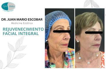 Rejuvenecimiento facial - Dr. Juan Mario Escobar