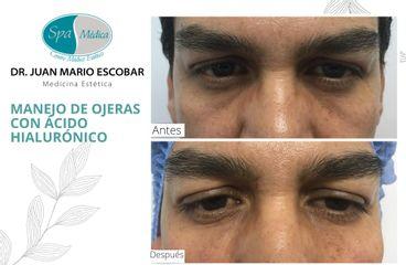 Eliminar ojeras - Dr. Juan Mario Escobar
