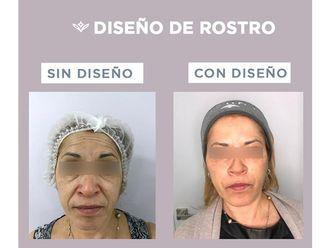 Rejuvenecimiento facial - 646273