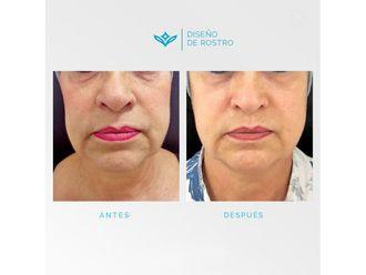 Rejuvenecimiento facial - 648307