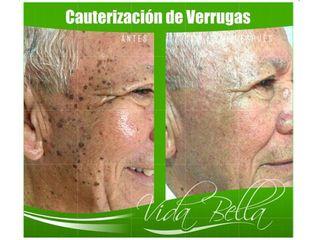 Cauterización de verrugas