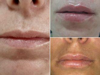 Aumento de labios-737210