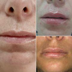 Aumento de labios - Vida Bella
