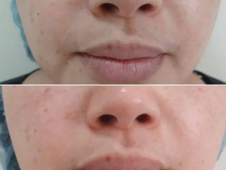 Rejuvenecimiento facial - 742414