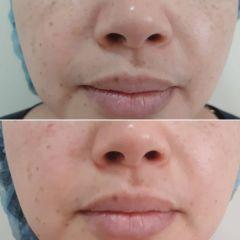 Rejuvenecimiento facial - Vida Bella