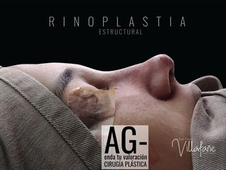 Rinoplastia estructural