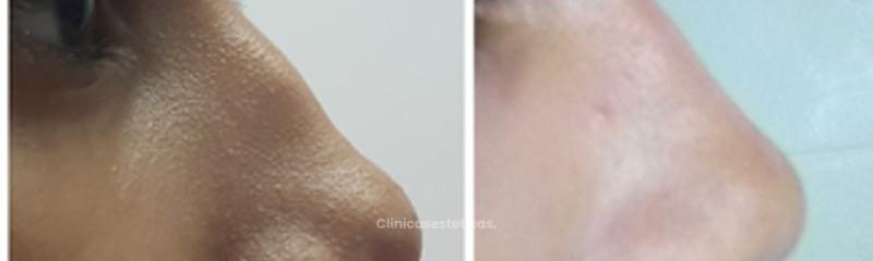 Lantia - Nutrición y Medicina Estética