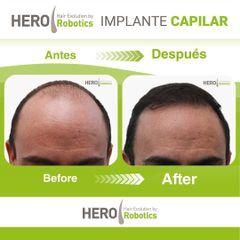 Implante Capilar - Hero Institute