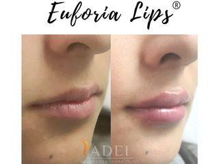 Euforia Lips ®