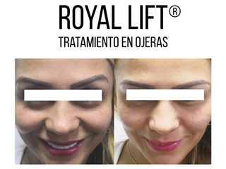 Royal Lift ® Ojeras