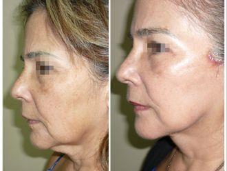 Lifting facial - 662180