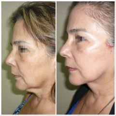 Dr. William Echeverry Duran - Lifting facial