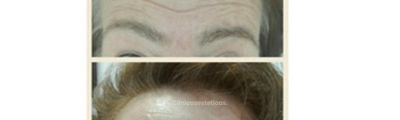 Tratamiento de arrugas frontales con bótox