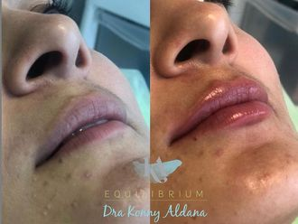 Aumento de labios-776292