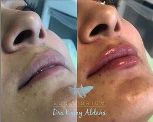 Aumento de labios - Dra. Konny Aldana