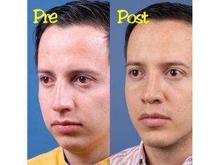 Rinoplastia - Dr. Edgar Felipe Díaz