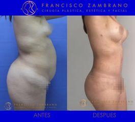Liposuccion, lipectomia ,mamoplastia de aumento , lipoinyeccion glutea