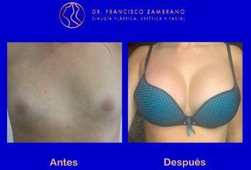 Mamoplastia de aumento / Volumen del implante 350 cc lisos