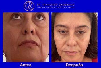 Cirugía de párpados inferiores (abordaje transconjuntival sin cicatrices)