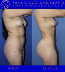 Liposucción, lipoinyección glútea y marcación abdominal