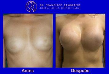 Mamoplastia de aumento con Volumen del implante 350  cc lisos