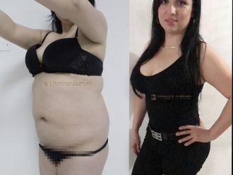 Abdominoplastia-661102