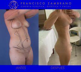 liposucción abdomen y espalda y lipoinyección en senos