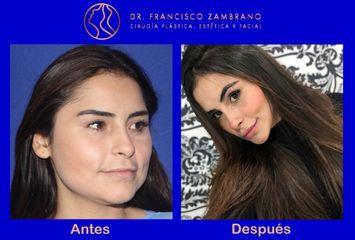Rejuvenecimiento facial  (Resultados naturales)