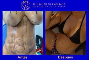 Dr. Francisco Zambrano - Eliminacion de fibrosis , pexia mamaria lipoinyeccion glutea