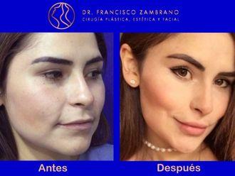 Rejuvenecimiento facial - 661461