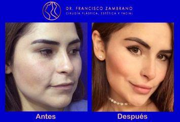 Dr. Francisco Zambrano - Rejuvenecimiento facial