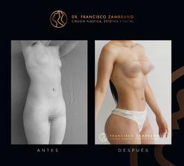 Dr. Francisco Zambrano - Liposuccion, lipoinyeccion glutea, marcacion abdominal