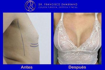 Dr. Francisco Zambrano - Mamoplastia de aumento