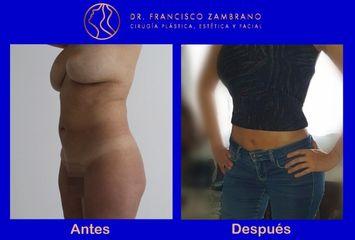 Dr. Francisco Zambrano - Liposuccion, lipectomia , lipoinyeccion glutea