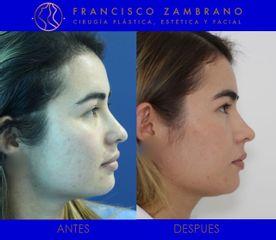 Dr. Francisco Zambrano - Rinoplastia