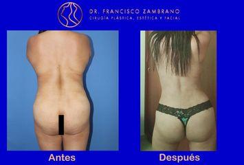 Dr. Francisco Zambrano - Lipoescultura