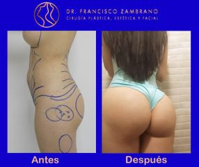 Dr. Francisco Zambrano - Aumento glúteo