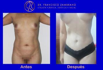 Abdominoplastia con marcacion de abdomen - Dr. Francisco Zambrano