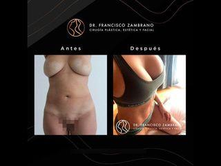 Abdominoplastia - Dr. Francisco Zambrano