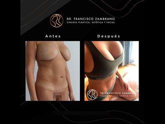 Abdominoplastia-688188