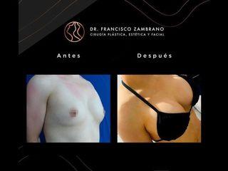 Mamoplastia de aumento - Dr. Francisco Zambrano