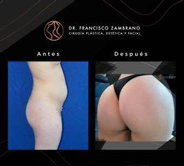 Gluteoplastia - Dr. Francisco Zambrano