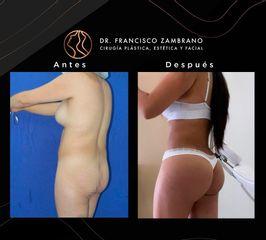 Lipoescultura - Dr. Francisco Zambrano