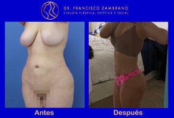Liposucción - Dr. Francisco Zambrano