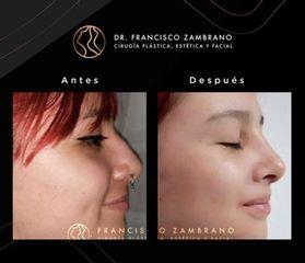Rinoplastia - Dr. Francisco Zambrano