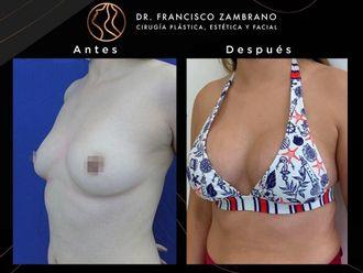 Mamoplastia de aumento - 791153