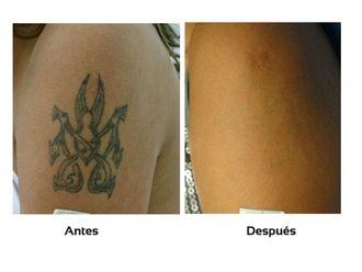 Borrar tatuajes-510415